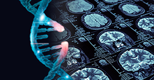 Webinar: Transforming CNS drug development with wet lab and imaging biomarker solutions